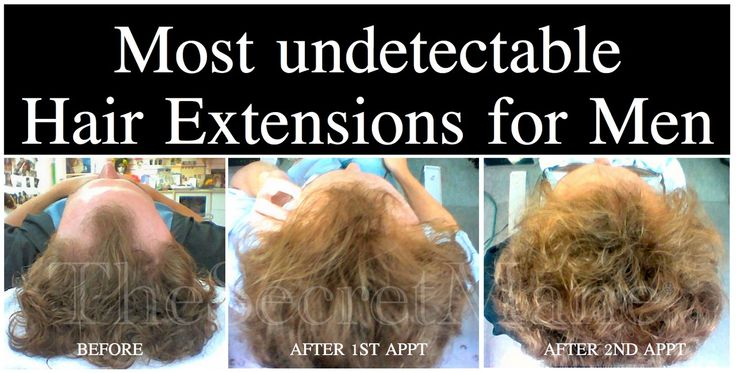 Mens Hair Piece Styles: 25+ Best Hair Extensions For Men Ideas On Pinterest