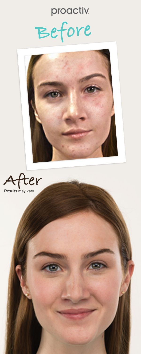 How to get rid of pimples? Simple! Try Proactiv and see results within 60 days or your money back guaranteed (minus S/H)!
