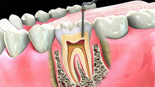 First time in Asia Hard Tissue Dental Laser from Germany for laser assisted #Root #canal #treatment at affordable Cost in Bangalore.