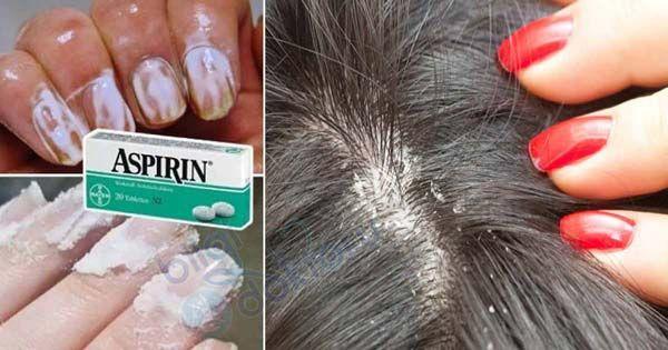 Tıp dünyasının mucizesi olan aspirin günlük hayatınızı kolaylaştıracak öyle farklı işlere yarıyor ki şaşacaksınız. Bakın aspirin ne işlerinize yarayabiliyormuş? 1) Saçınızdaki kepeği önleyin. İki adet aspirini ezerek kullandığınız şampuana katın. Saçınızı şampuanladıktan sonra 1-2 dakika bekleyin ve iyice durulayın. 2) Ayağınızdaki nasırları tedavi edin. 5-6 adet aspirini havanda döverek toz haline getirin. 1 çay kaşığı …