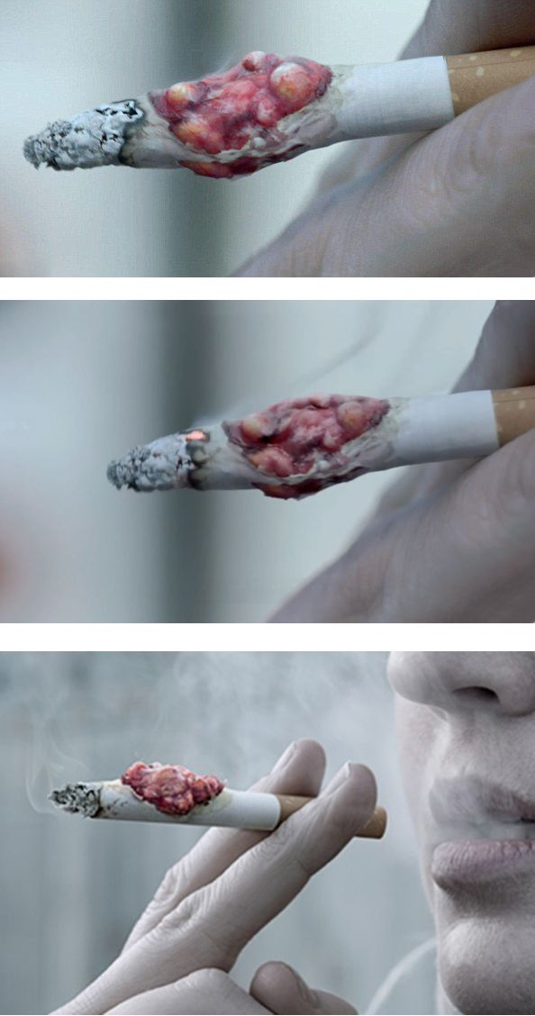 Smoking disease