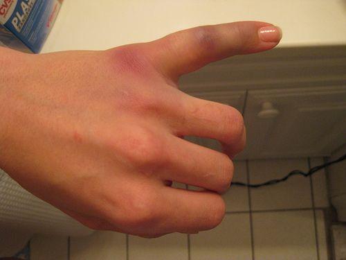 Smashed Your Finger