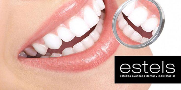 OFERTA CUPONISIMO: Blanqueamiento dental LED con revisión, radiografía y diagnóstico por sólo 59€