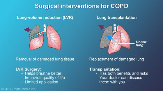 Surgery and COPD