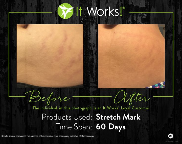 438 best It Works! Results images on Pinterest | Works