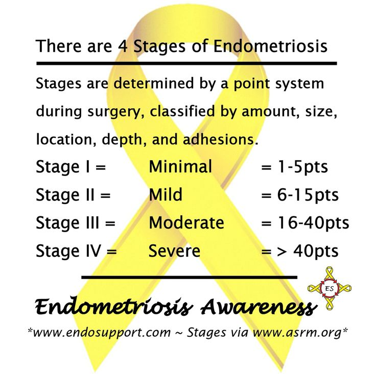 There are 4 Stages of Endometriosis.  Stages are determined by a point system during surgery, classified by amount, size, location, depth, and adhesions.  Stage I = Minimal = 1-5pts Stage II =  Mild = 6-15pts Stage III = Moderate = 16-40pts Stage IV = Severe = > 40pts *Stages via: https://www.asrm.org/BOOKLET_Endometriosis/ #EndoDidYouKnow #Endometriosis #EndoAware #EndoSisters #Endo #EndoSupport