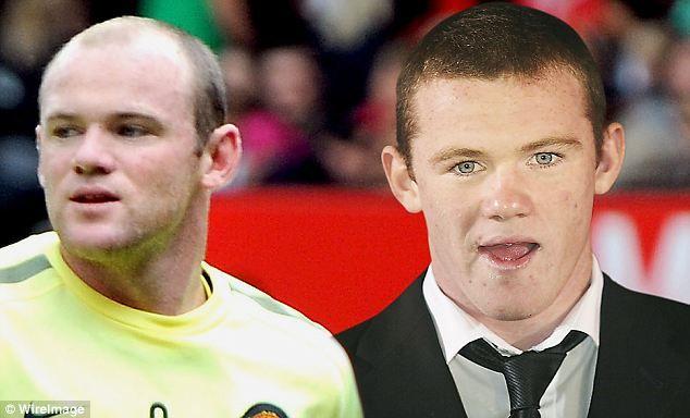 Wayne Rooney Bald & New Hair
