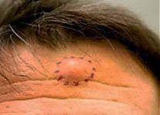 Избавляемся от жировика без операции | Друг пенсионера  Жировик — это доброкачественная опухоль из жировой ткани, еще ее называю липома. На ощупь опухоль очень напоминает скопление жира в подкожной клетчатке у тучных людей.