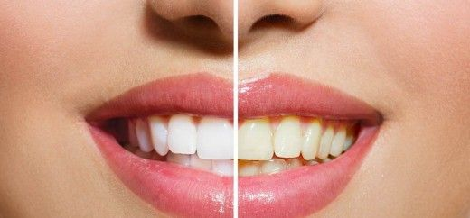 25 Effective Home Remedies To Get White Teeth