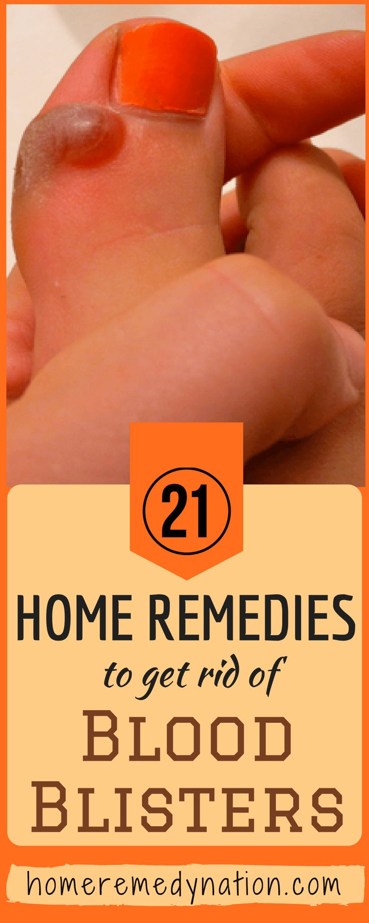 21 Wondrous Home Remedies To Get Rid Of Blood Blisters | Home Remedy Nation