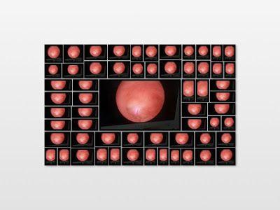 Cirugia Minima Invasiva Ginecologica: Realidades de la histeroscopia diagnostica en la c...