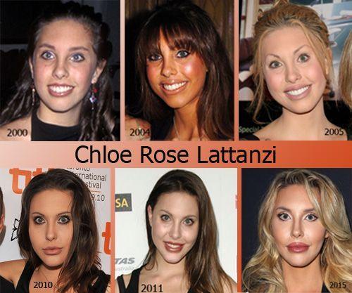 Image result for Chloe Rose Lattanzi