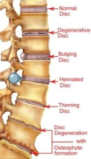 6d8ed59122e38 Pin by nancy nwuneli on Health - MusculoSkeletal Issues | Spine health,  Health, Sciatica pain