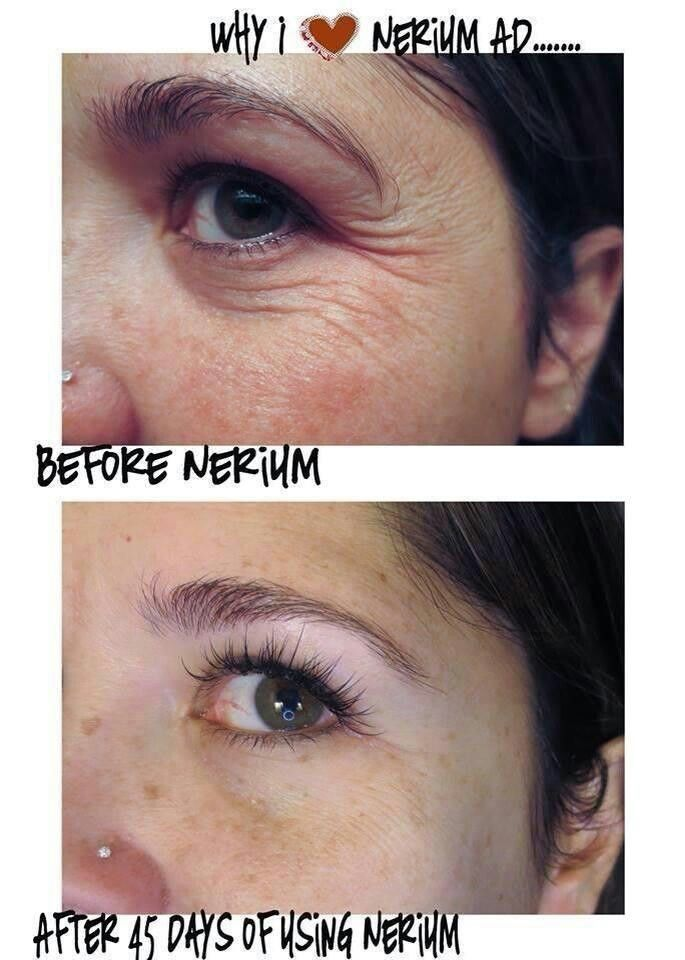 Wowzers!  This product works wonders.  You have to sample it for a week.   https://www.shirleytrent.nerium.com