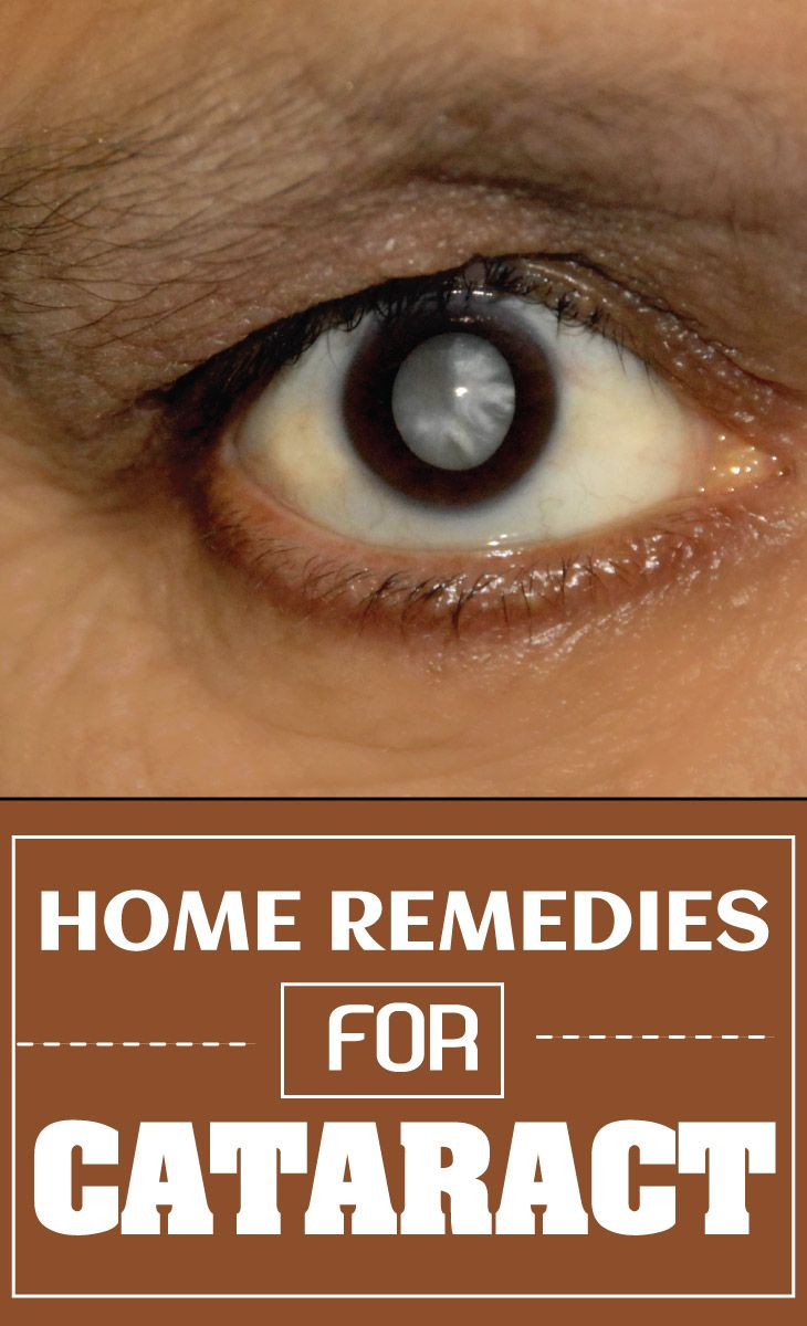 Home Remedies for Cataract | Remedies Corner