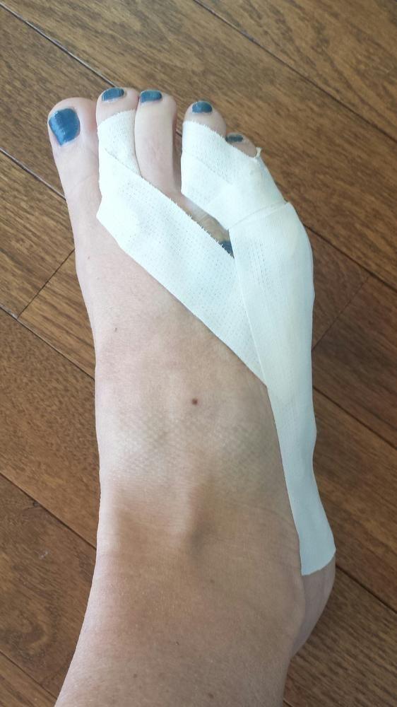 A Broken Toe