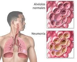 Nuevo post en nuestro blog. Síntomas de principio de neumonía. http://farmaciapalomeque.es/blog/sintomas-de-principio-de-neumonia/