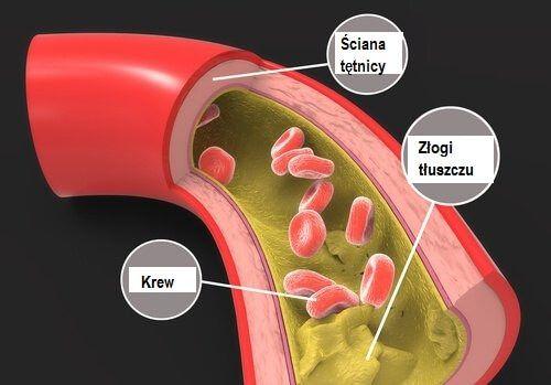 Triglicerydy to tłuszcz znajdujący się w naczyniach krwionośnych, który - tak jak cholesterol - jest niezbędny do prawidłowego funkcjonowania organizmu.
