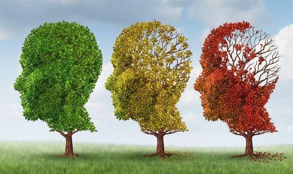 Alzheimer's Stages of Alzheimer's Disease