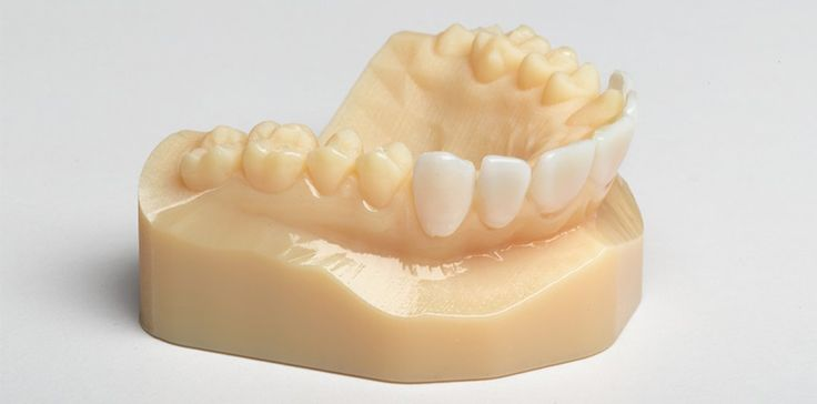 3DPRINTSONDEMAND | Dental Industry | 3D Printing & 3D Scanning Services - Greece