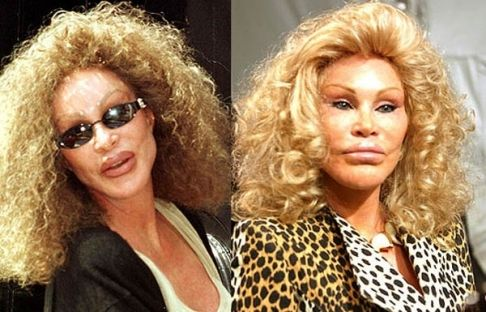Jocelyn Wildenstein Botox Before And After Botox Before