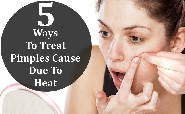 5 Ways To Treat Pimples Cause Due To Heat