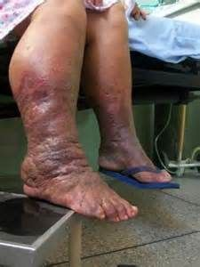 I DO NOT want to end up like this! Diet & exercise is key to regulating BS. PLUS taking meds if needed. Do not skip meds until DR says to stop. Swelling in the lower limb from diabetes causing the loss of the leg...