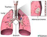 Adenocarcinoma of the Lung ... and then What Type of Lung Cancer is BAC (Bronchioloalveolar Carcinoma)? Receptors or none??? Chemo only!!!