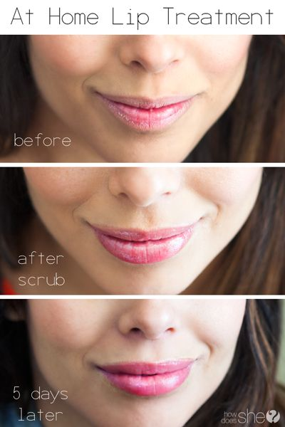 DIY Edible Sugar Lip Scrub! An at Home Lip Treatment for Dry & Cracked Lips! Husband Approved!!