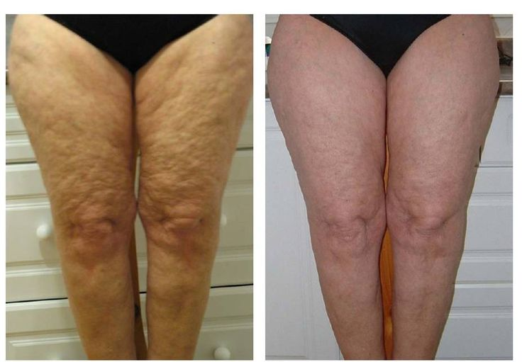 Before and after photo result on cellulite using ageLOC Galvanic Body Spa with ageLOC Body Shaping Gel as #anti-aging body treatment. ageLOC Galvanic Body Spa with ageLOC Body Shaping Gel also: * Breakdown Fat * Enhance Body Contour * Alleviate Fine Lines * Abolish Cellulite * Concealed Stretch Mark * Improve Keloids * Firm Flabby Arms * Promote Toned Figure. Use ageLOC Dermatic Effects Body Contouring Lotion twice a day for maximum #anti-aging and toned body.