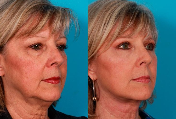 Facelift before and after pictures - Buckingham Center for Facial ...