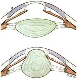 """Anterior Lenticonus... Lenticonus is seen in """"Alport syndrome"""""""