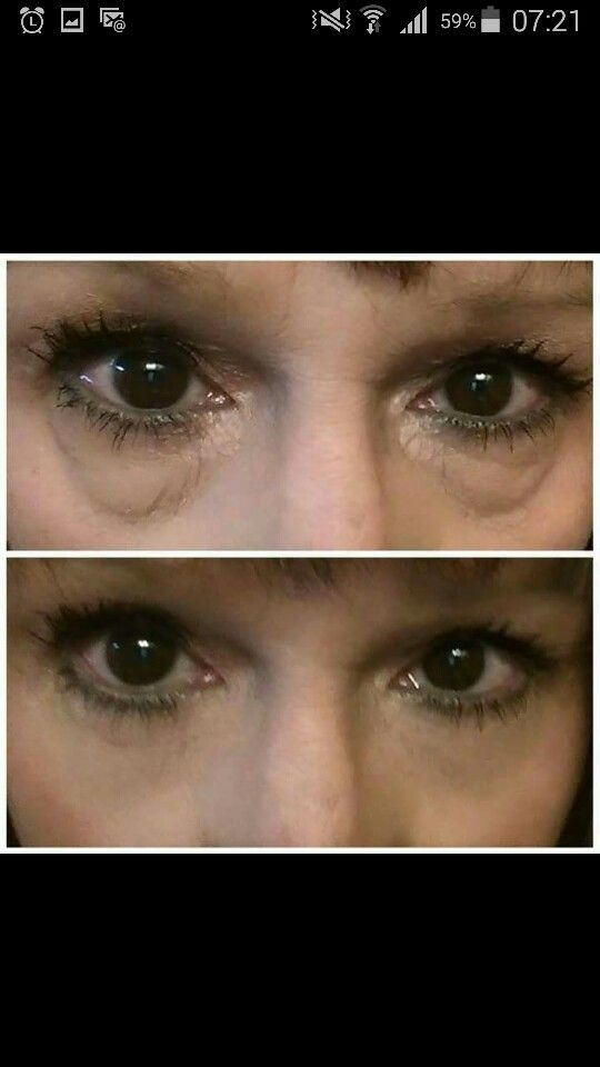 Before & After using Instantly Ageless