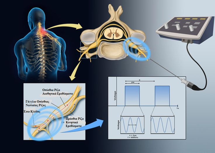 Using Eggshell Membrane as Nerve Guide Channels in Peripheral Nerve Regeneration