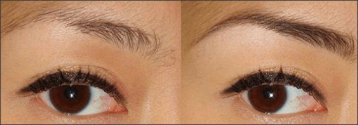 Muitas mulheres estão tendo problemas com suas sobrancelhas - às vezes são muito grossas e podem resistir a crescer de volta uma vez depenadas. As sobrancelhas são