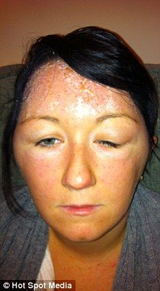 Worried: Mariade Kelly's face swells as the allergic reaction takes hold (She was allergic to Garnier hair dye, black