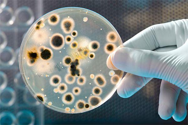 Qu'est-ce qu'un biofilm ? Un biofilm est un groupe de micro-organismes dans lequel des cellules adhèrent les unes aux autres ainsi qu'à une surface à laquelle elles se fixent.