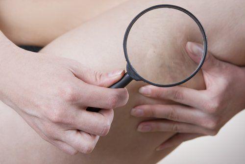 Éliminer la cellulite est possible