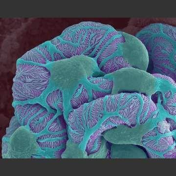 Kidney Glomerulus.