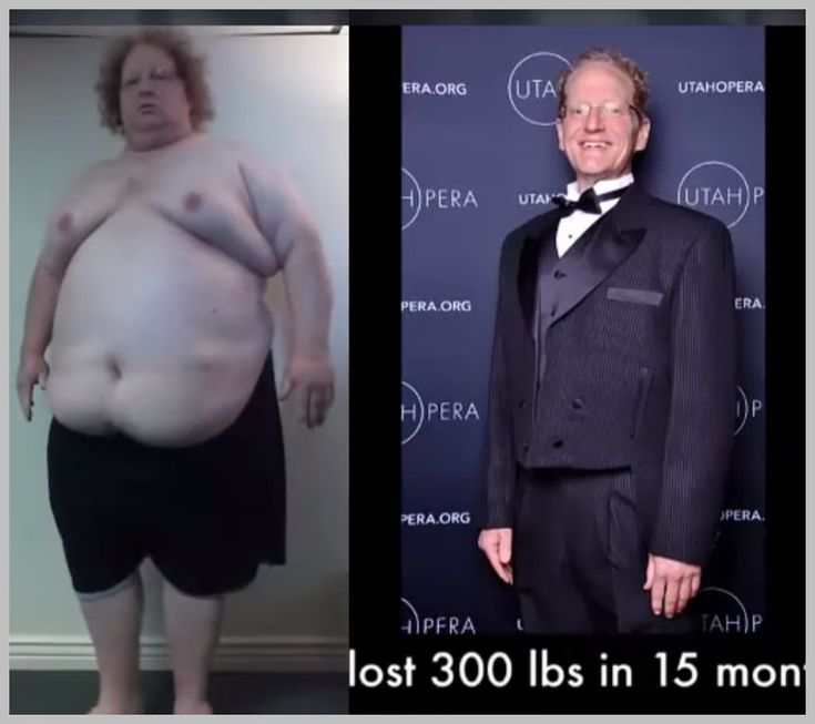 Weight loss doctors port arthur tx