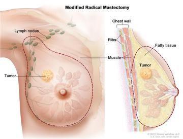 Representação da área da mama retirada numa cirurgia de mastectomia total.