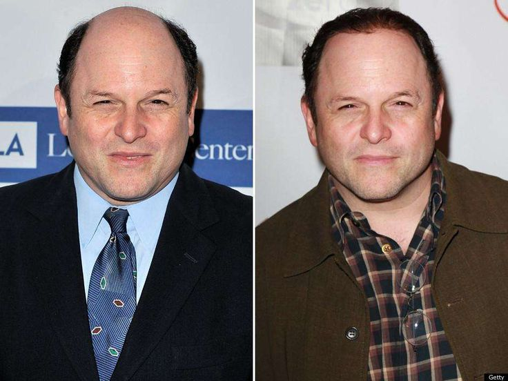 Jason Alexander Hair Transplant - Lots of Celebrities like Jason Alexander has done successful hair transplant, Hair implant cosmetic surgery. You can also get your hair back and it can become from bald to beautiful.  At Dezire Clinic we provide Hair Transplant at very low cost with 100% results. You can consult your case with our experts at Pune, Delhi, Gurgaon, Bangalore and Channai. Call us on +91 9222122122
