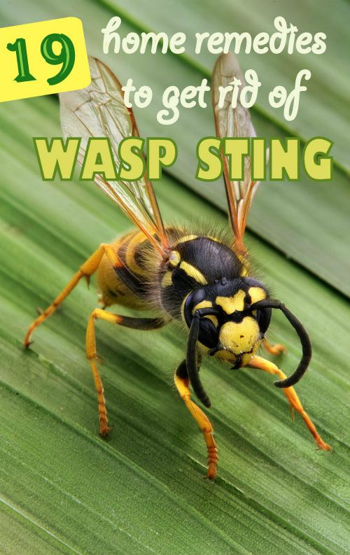 19 Easy Home Remedies to Get Rid of Wasp Sting #homeremedies