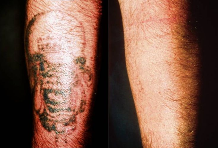 The 15 best images about tattoo removal before and after for Tattoo removal az