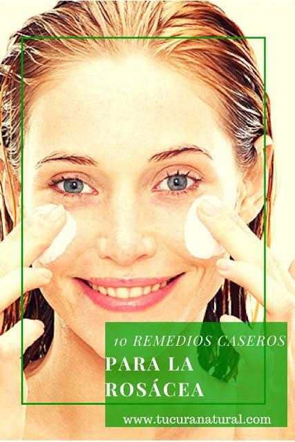 10 Remedios caseros para la rosácea