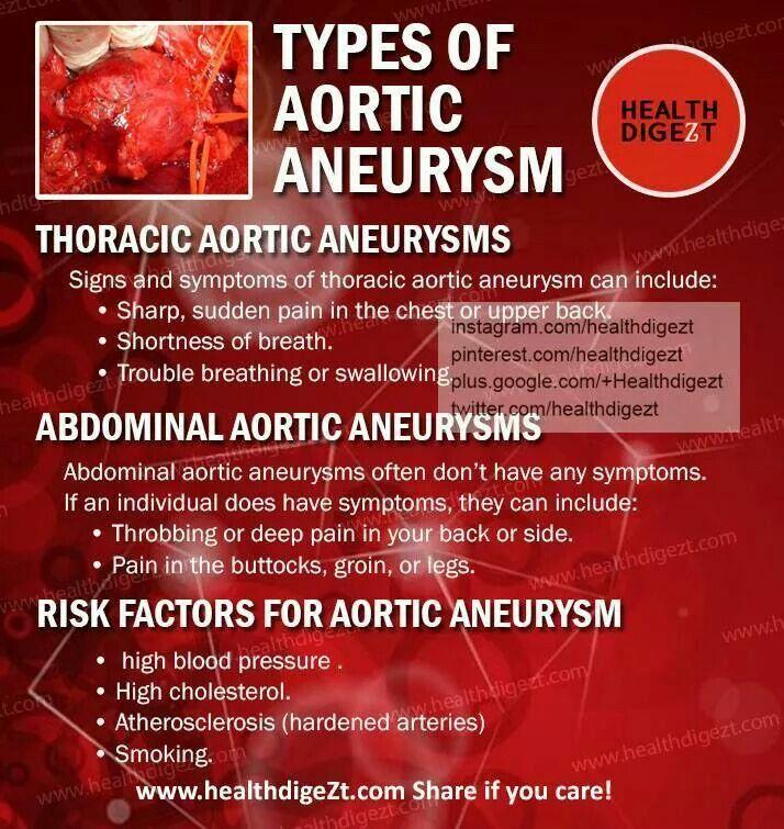 die besten 25+ aortic aneurysm ideen nur auf pinterest, Human Body