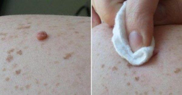 Υγεία - Οι κρεατοελιές είναι κοινές, μη καρκινικές αλλοιώσεις του δέρματος και είναι απολύτως ακίνδυνες για την υγεία μας. Μπορεί να βρίσκονται σε οποιοδήποτε σημε