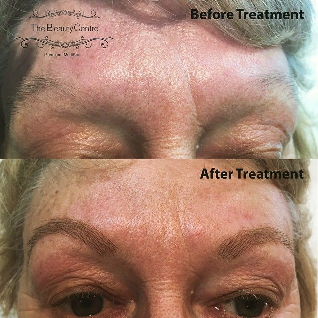 New to #thebeautycentrebraintree #Brow #Extensions #Before&after Book yours today on 01376 560 600 or visit www.thebeautycebtrebraintree.co.uk/beauty/brow-boutique/