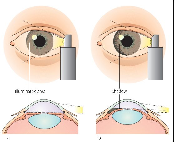 Best Eyes Images On   Health Medical And Health Care