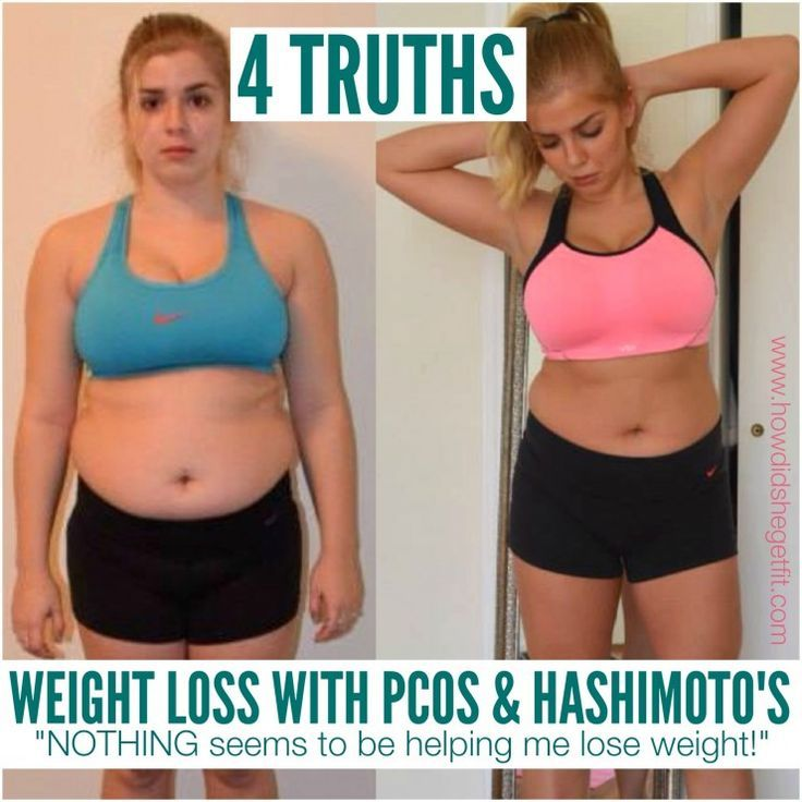 pcos pills for weight loss